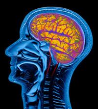 mri of stretching brain